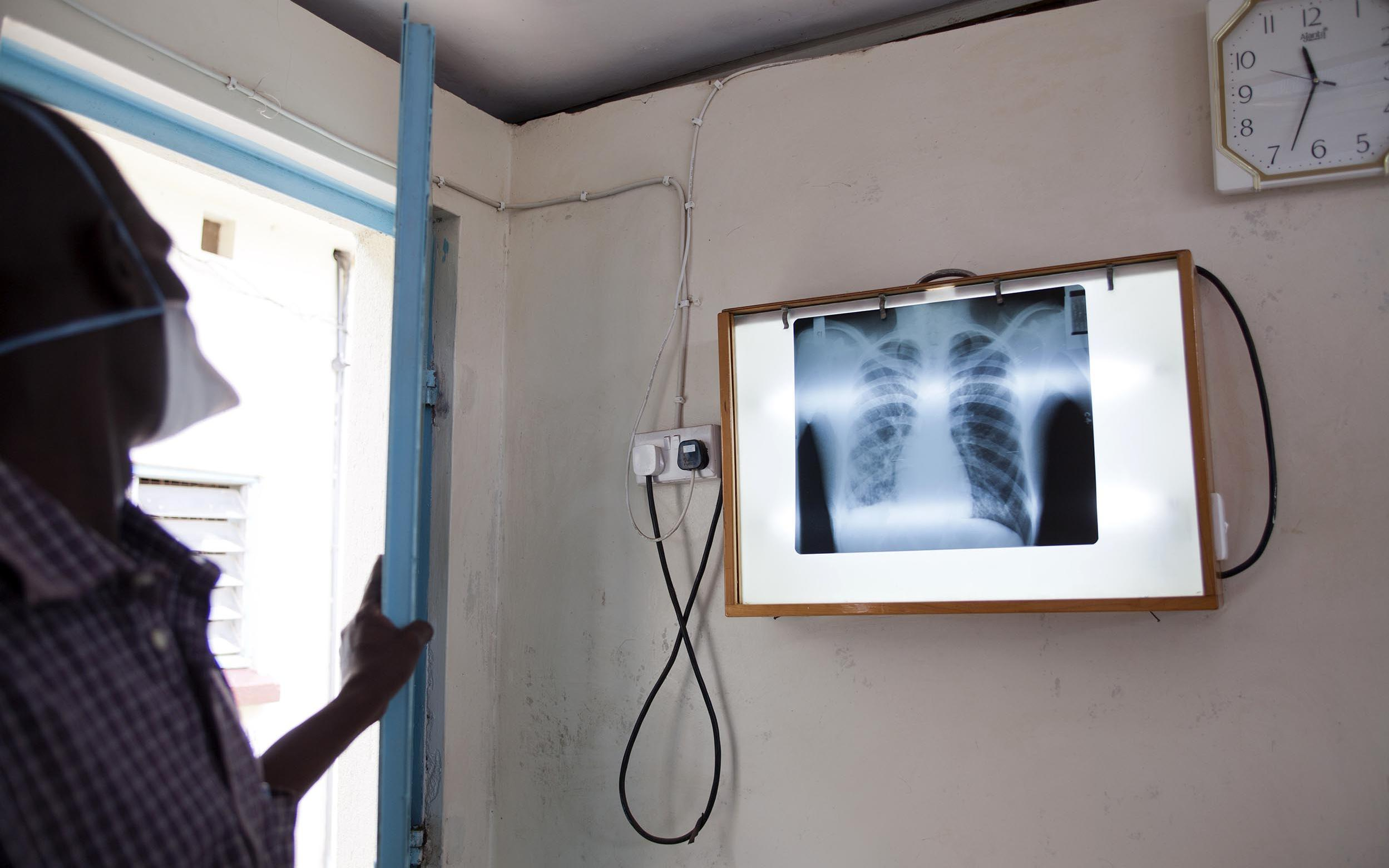 A chest x-ray is not available in many resource-limited settings, or TB diagnosis is not possible in many patients using only chest X-ray.