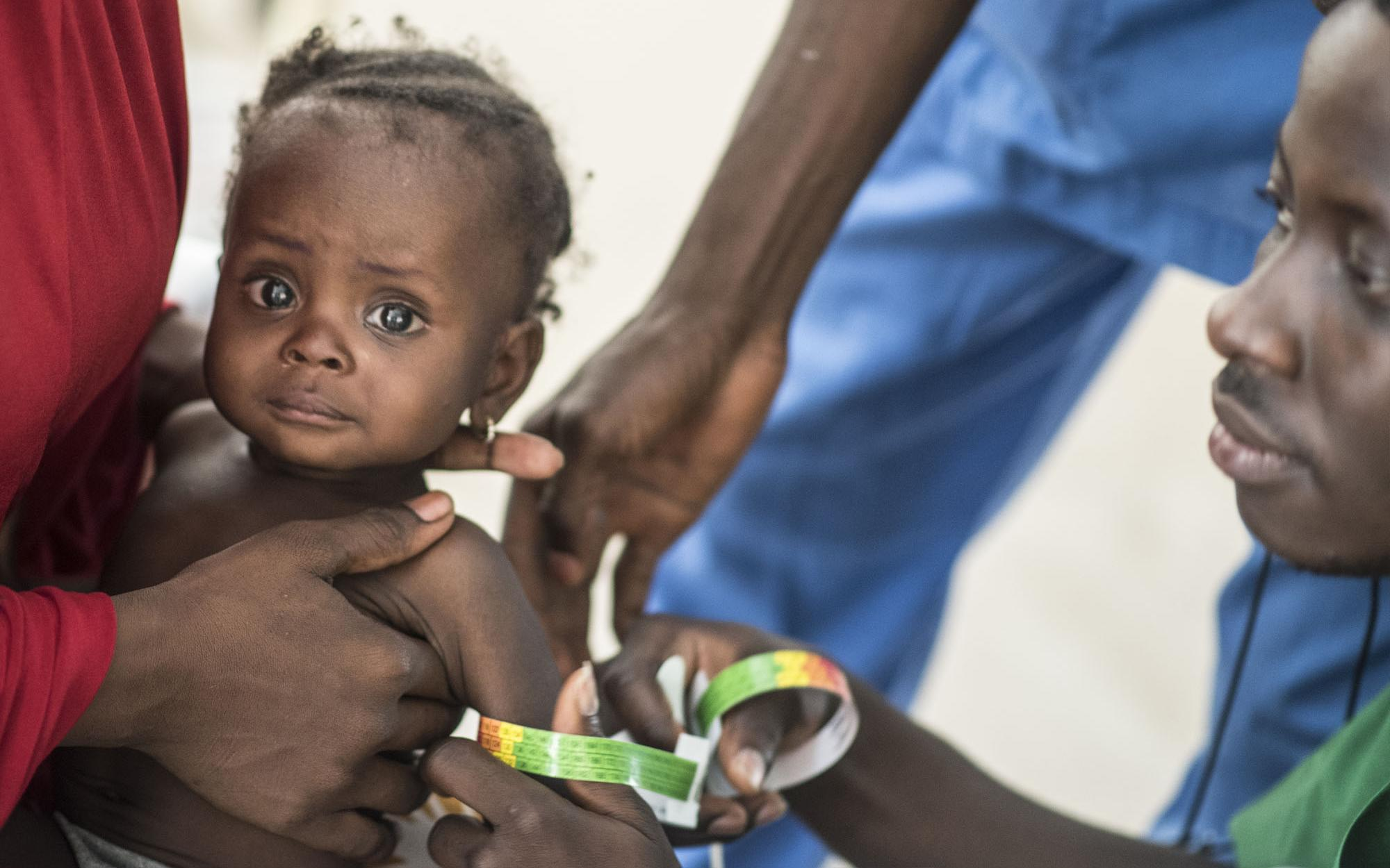 Mid-Upper Arm Circumference (MUAC)  is simple method of identifying malnourished young children.