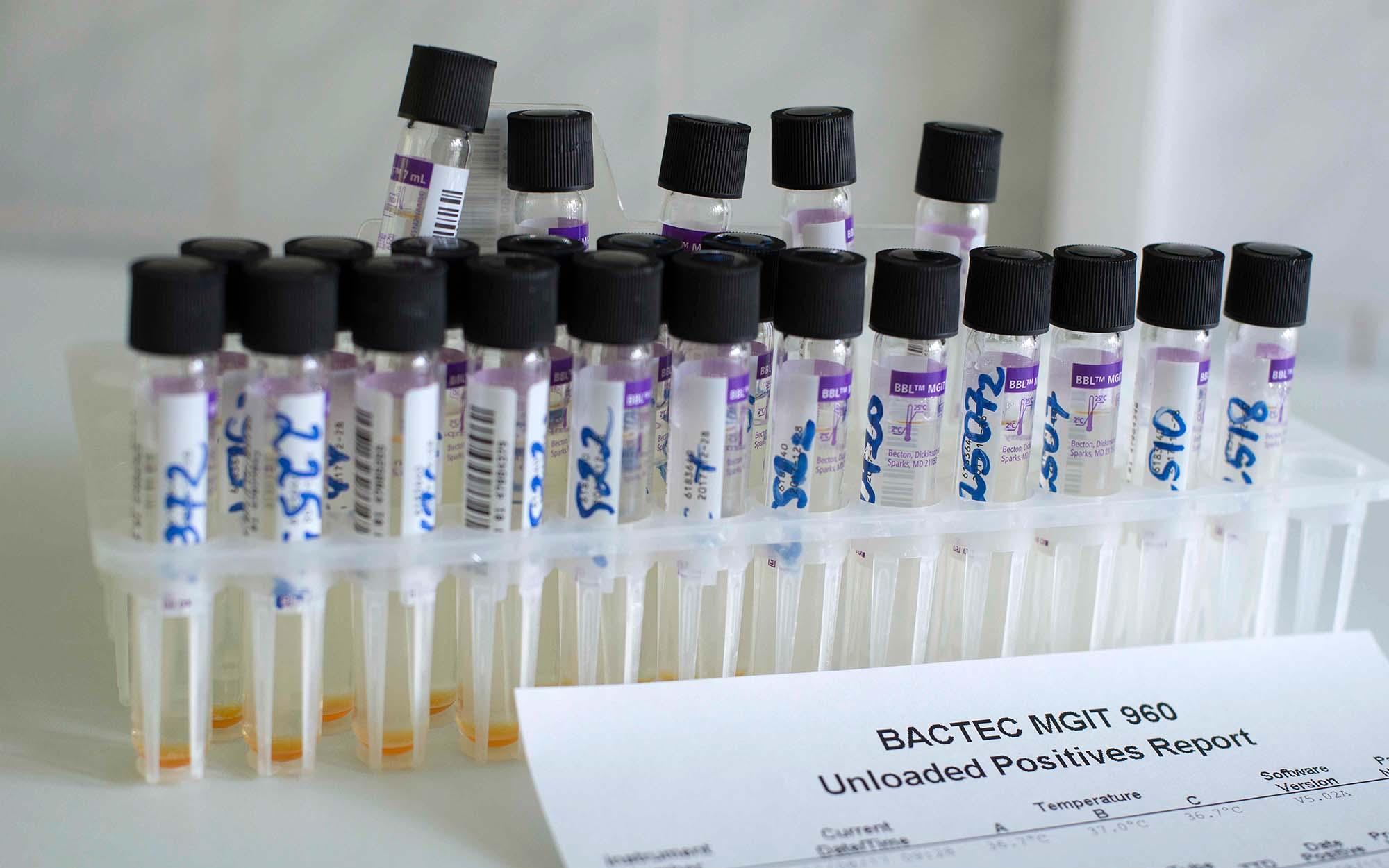 Samples from BACTEC test system used in TB diagnostics and follow-up.